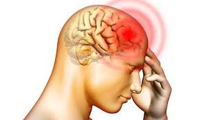 Types of headaches - Blog post by Dr Gert Ferreira Chiropractor in Centurion. Contact us at 012 6631572